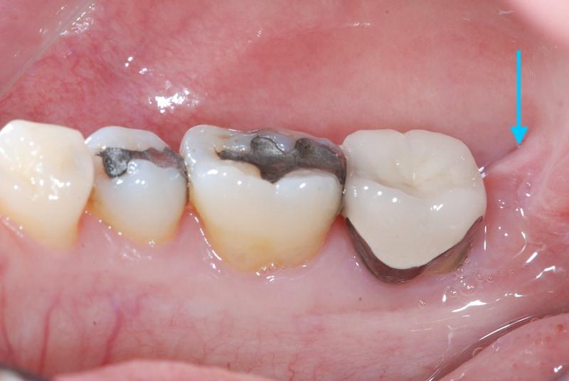 第二階段牙周病手術-左下第二大臼齒-去除牙周囊袋