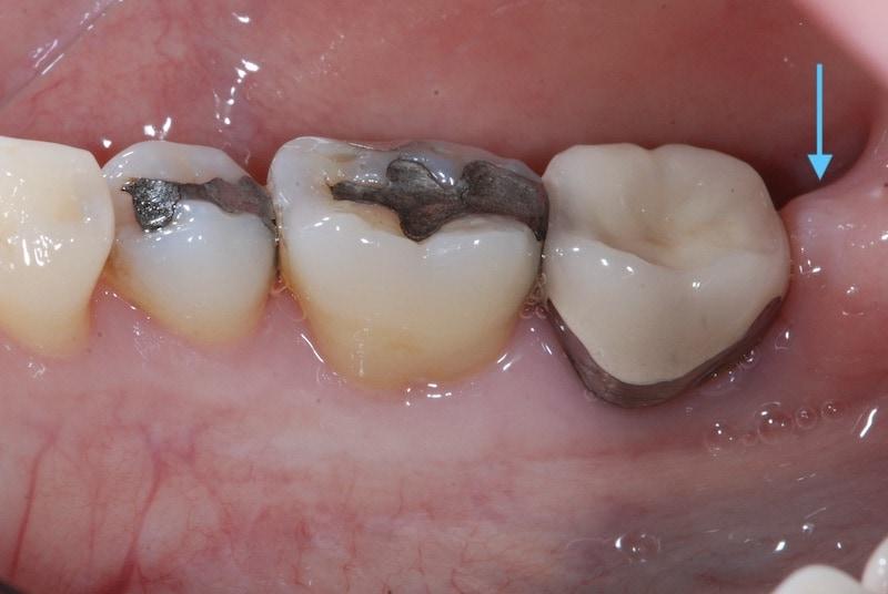 第二階段牙周病手術-左下第二大臼齒-手術前-殘存較深的牙周囊袋