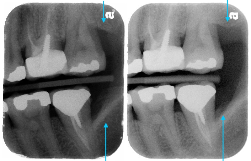 第二階段牙周病手術-左下第二大臼齒-手術後比較-牙周齒槽骨再生