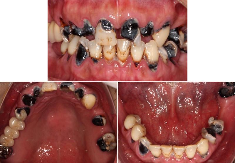 嚴重牙周病治療前口內狀況-嚴重蛀牙-牙齦發炎-桃園中壢牙周病