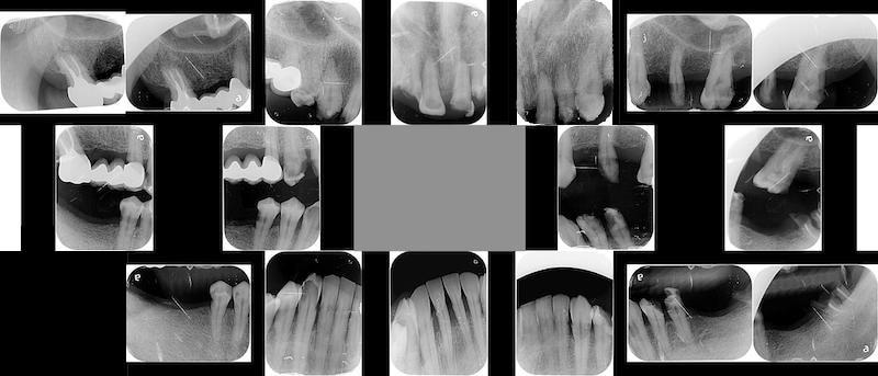 嚴重牙周病治療前-全口X光片-桃園中壢牙周病