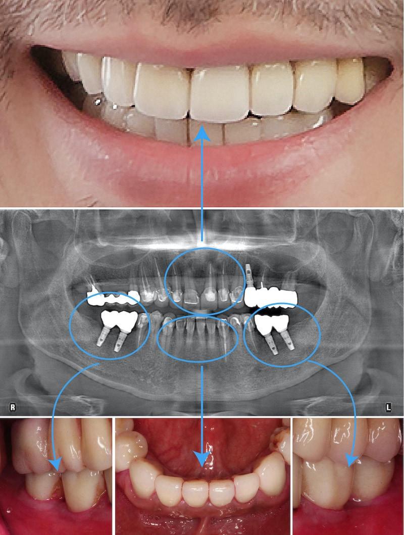 嚴重牙周病治療-植牙假牙-陶瓷貼片-全瓷冠-術後一年多追蹤-成效美觀且穩定-桃園中壢牙周病