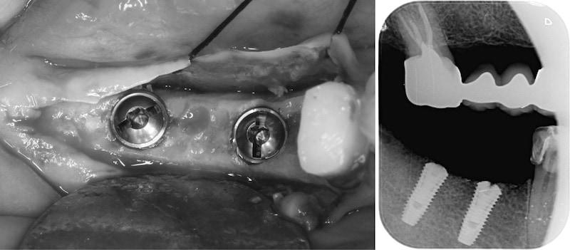 舒眠麻醉植牙-右下兩顆臼齒-桃園中壢牙周病