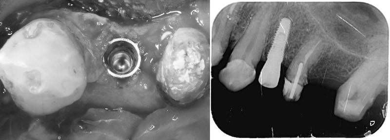 舒眠麻醉植牙-左上第一小臼齒-桃園中壢牙周病