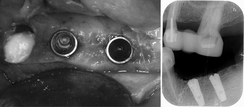 舒眠麻醉植牙-左下兩顆臼齒-桃園中壢牙周病