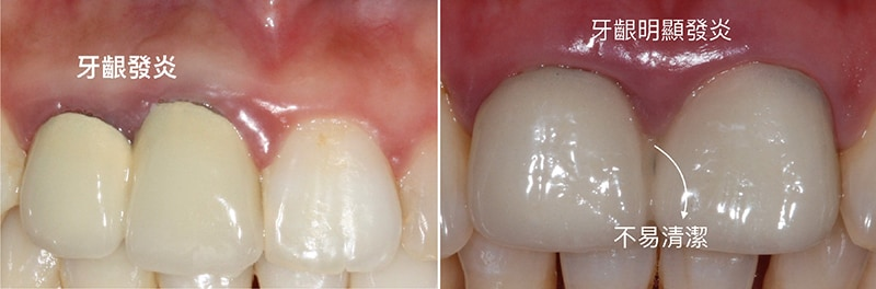 假牙不密合-生物寬度-牙齦發炎-牙齦萎縮-治療-桃園