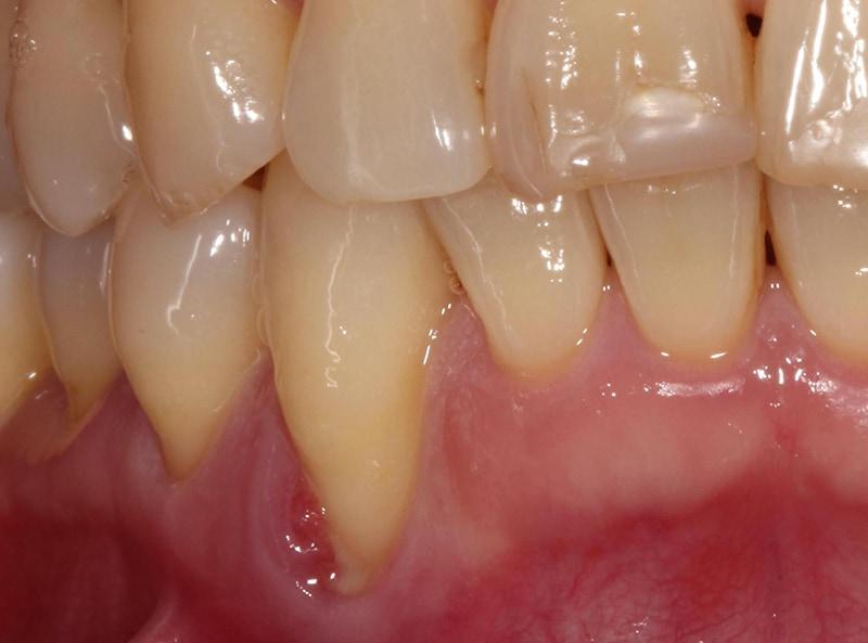 全口嚴重牙周病-牙周病治療-治療前-牙齦紅腫發炎化膿-牙齦萎縮-治療-桃園
