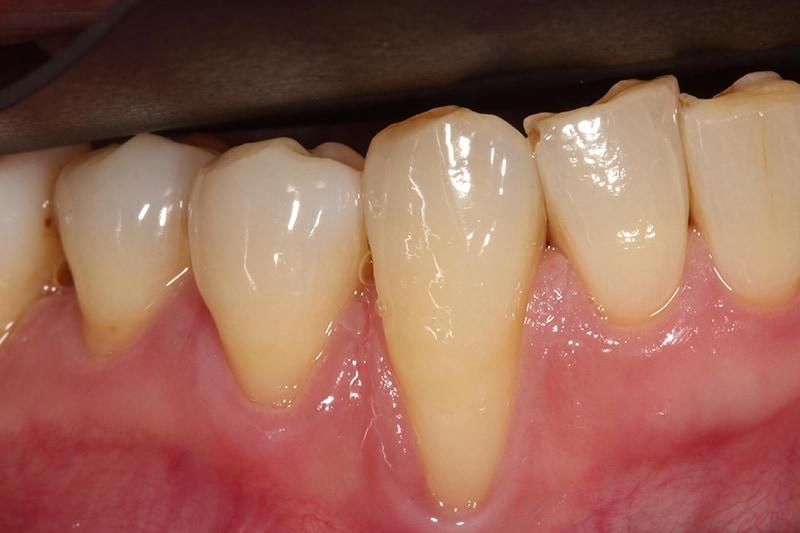 全口嚴重牙周病-牙周病治療-治療後-牙齦紅腫緩解-牙齦萎縮-治療-桃園