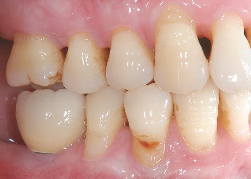刷牙方式-牙齦萎縮案例-齒頸部刷耗-牙齦萎縮-治療-桃園
