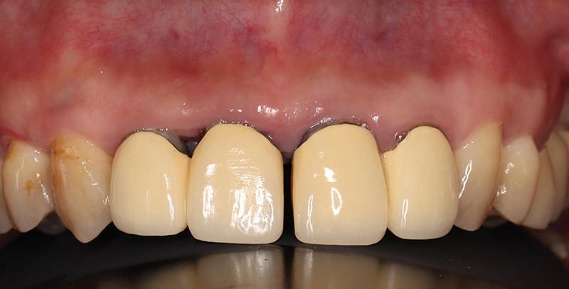 嚴重牙齦萎縮-手術前-舊假牙門牙位移-牙縫大-牙齦萎縮-治療-桃園