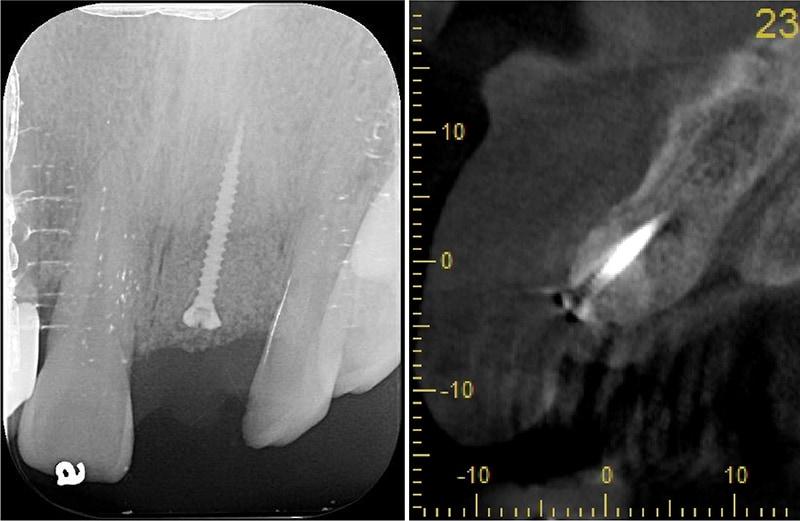 嚴重牙齦萎縮-植牙-拔牙-手術中-補骨粉-牙齦萎縮-治療-桃園
