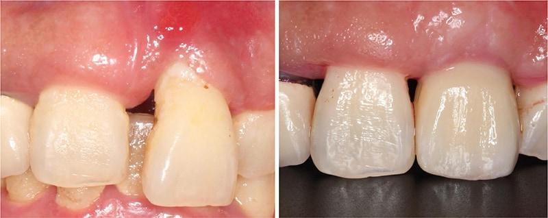 嚴重牙齦萎縮-植牙-拔牙-手術前後比較-牙齦萎縮-治療-桃園