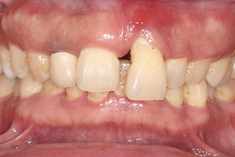 嚴重牙齦萎縮-植牙-拔牙-手術前-牙齦萎縮-治療-桃園