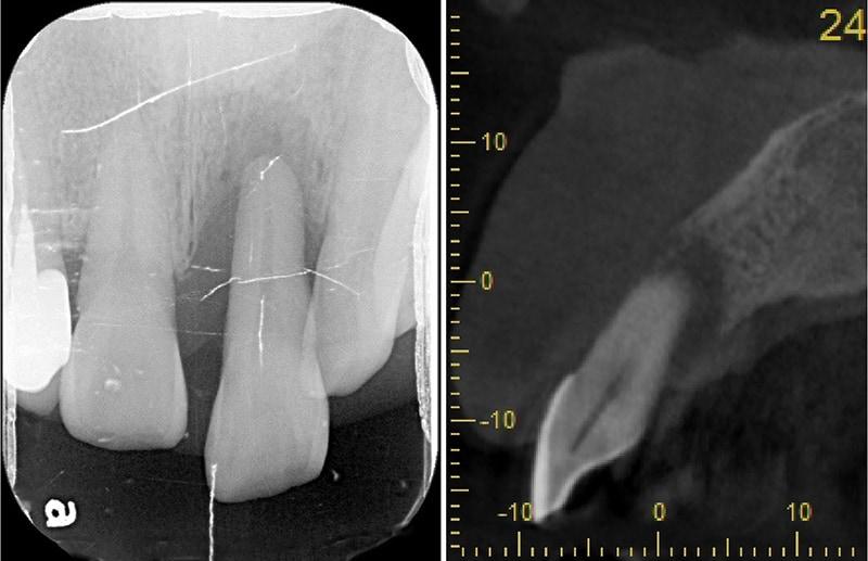 嚴重牙齦萎縮-植牙-拔牙-手術前-X光片-電腦斷層影像-齒槽骨破壞超過牙根尖端-牙齦萎縮-治療-桃園