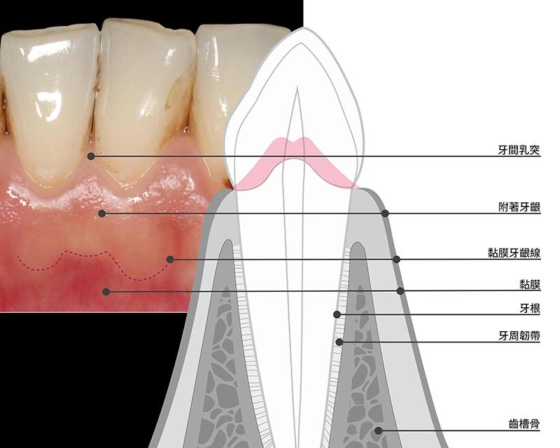 無牙齦萎縮的健康牙齦-牙齒牙齦-葉立維醫師-桃園-牙齦萎縮-牙周病