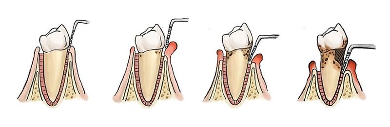 牙周病-牙齦萎縮-示意圖-葉立維醫師-桃園牙周病