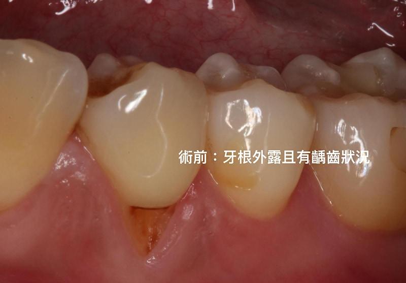 牙根覆蓋術-水雷射-牙周再生-手術前-牙根外露-牙根蛀牙-牙根敏感-牙齦萎縮-治療-桃園