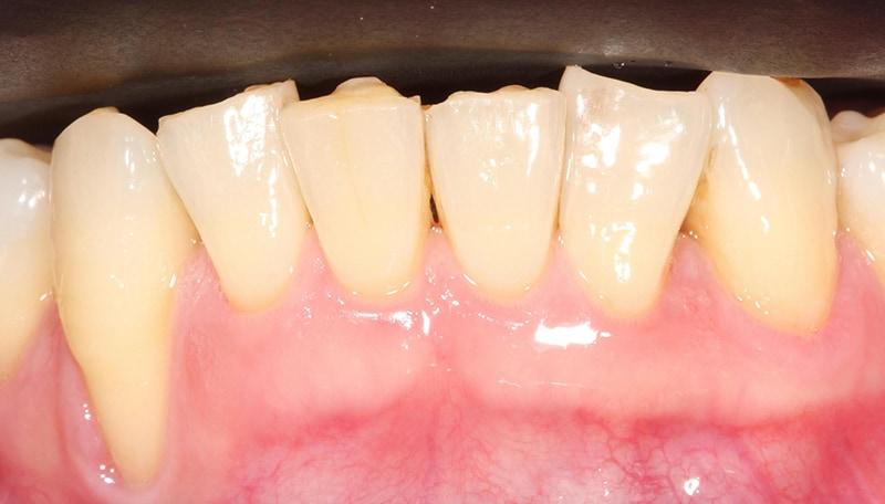牙根覆蓋術-牙周再生-水雷射-手術前-牙根外露-牙齒變長-牙齦萎縮-治療-桃園