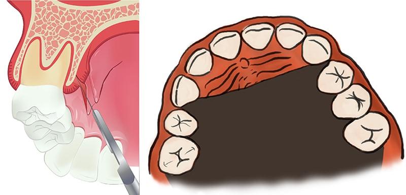 牙齦萎縮手術-牙齦移植手術-補牙肉-自體組織移植-牙齦萎縮-治療-桃園