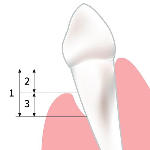 牙齦萎縮示意圖-牙根外露-牙周囊袋變深-葉立維醫師-桃園牙周病