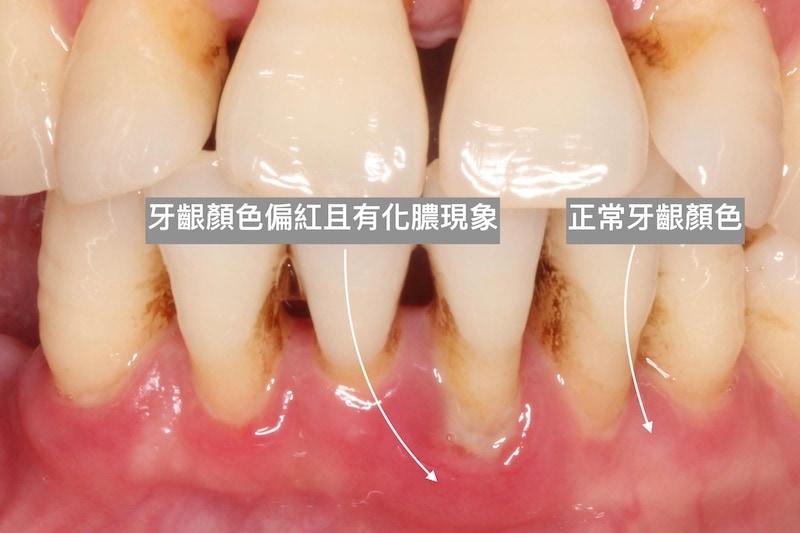 牙齦-顏色比較-牙齦萎縮-牙周病-葉立維醫師-桃園