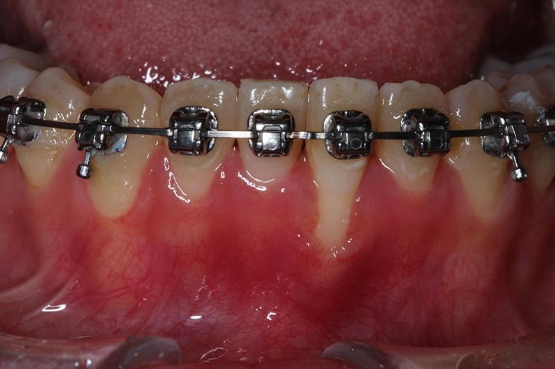 矯正中牙齦嚴重萎縮-牙根覆蓋術-牙周再生-水雷射-手術前-牙根外露-角化牙齦太薄-牙齦萎縮-治療-桃園