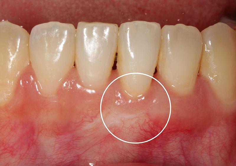 矯正中牙齦嚴重萎縮-牙根覆蓋術-牙周再生-水雷射-手術後-牙齦萎縮-治療-桃園
