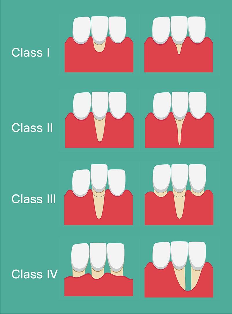米勒分類法-牙齦萎縮嚴重程度分類-葉立維醫師-桃園牙周病