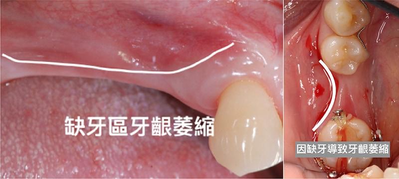 缺牙不補-牙齦萎縮-示意圖