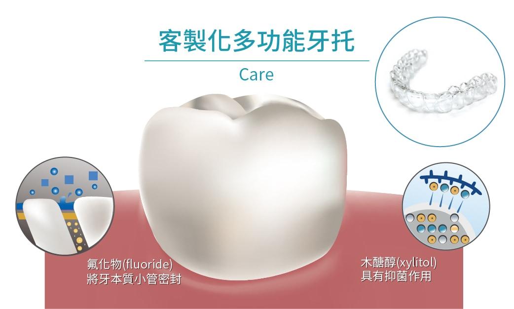 水雷射牙周治療-步驟-客製化多功能牙托-預防蛀牙-牙齒敏感-牙周雷射-桃園牙周病-牙周專科-推薦