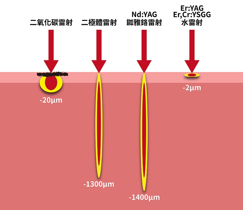 不同雷射種類穿透度比較-水雷射深度比較淺-葉立維醫師-桃園牙周病