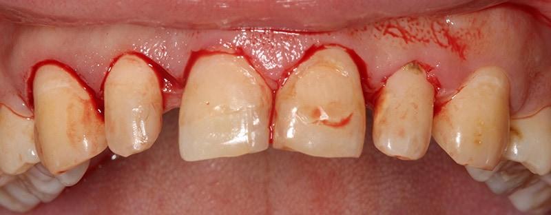 傳統牙周手術-牙齦切割-流血