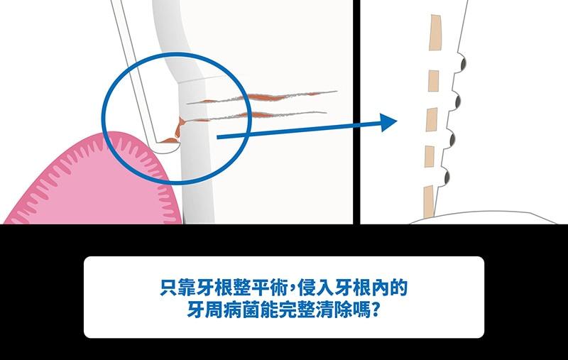傳統牙周病治療-牙根整平術-無法完整清除牙周病細菌-葉立維醫師-桃園牙周病