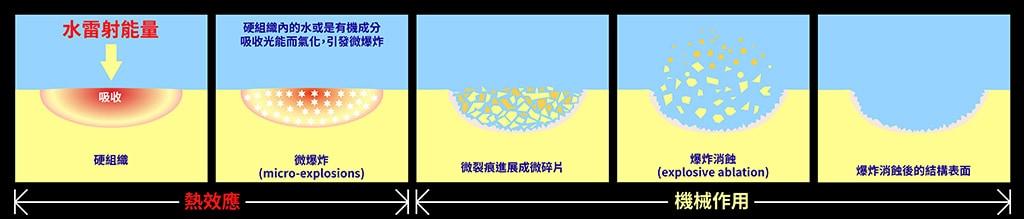 水雷射原理-水雷射過程示意圖-水雷射牙周病治療-葉立維醫師-桃園牙周病