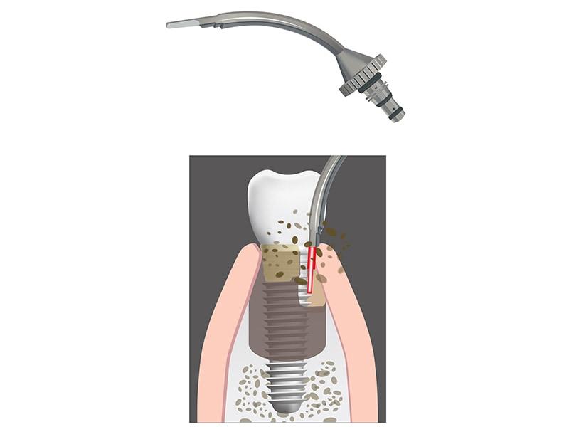 水雷射植牙-Er.YAG 水雷射-輔助治療植體周圍炎-葉立維醫師-桃園牙周病