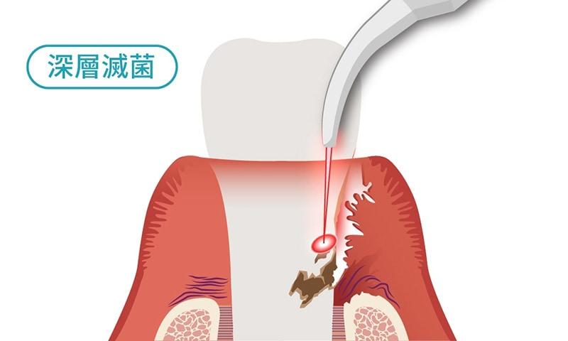 水雷射牙周病治療特色2-深層滅菌-葉立維醫師-桃園牙周病治療推薦