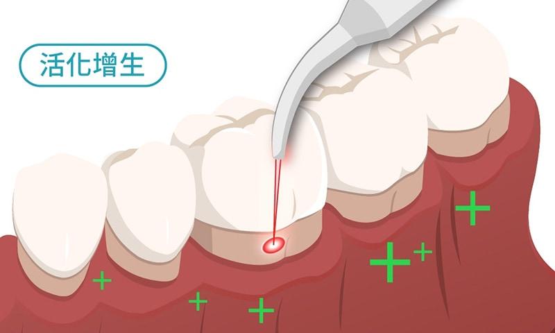 水雷射牙周病治療特色3-加快癒合-葉立維醫師-桃園牙周病治療推薦