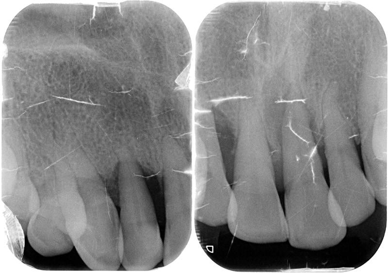 水雷射牙周病治療-案例-微創水雷射輔助牙周再生-治療前上顎局部X光-齒槽骨支撐狀態差
