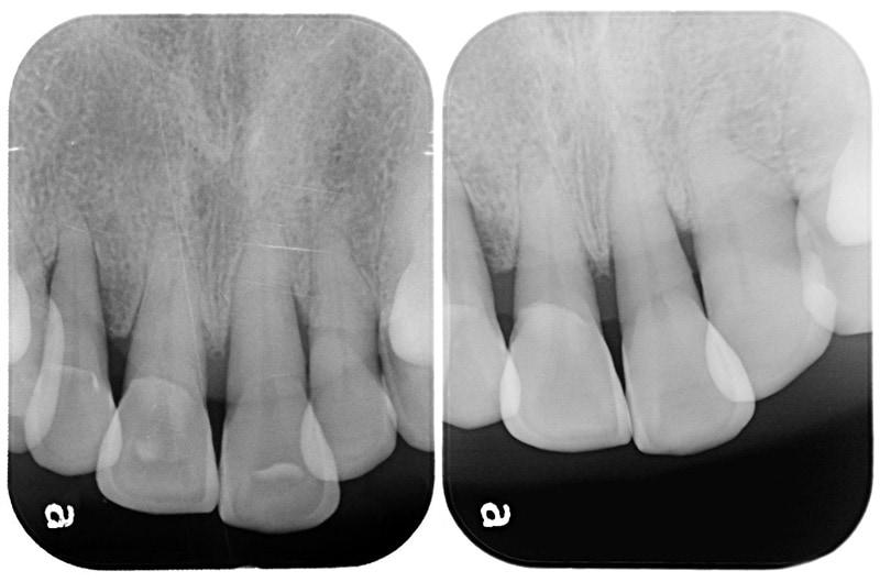 水雷射牙周病治療-案例-微創水雷射輔助牙周再生-治療後齒槽骨明顯再生