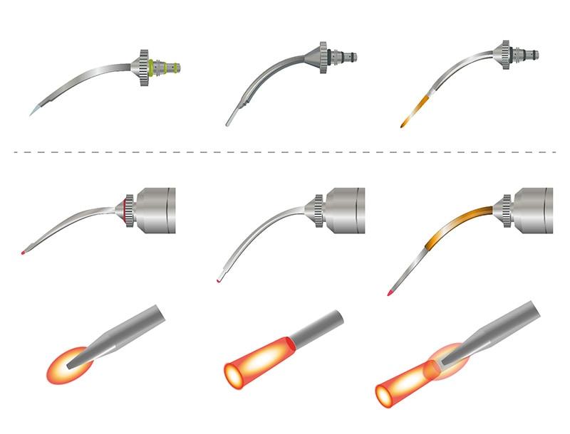 水雷射-不同水雷射尖端設計產生不同的照射方式角度-葉立維醫師-桃園牙周病