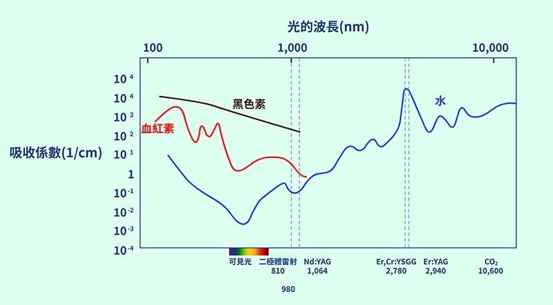 水雷射-二極體雷射-二氧化碳雷射-各類型雷射光能轉化率比較-葉立維醫師-桃園牙周病
