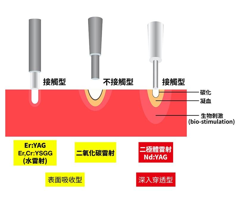 雷射種類-水雷射-二極體雷射-二氧化碳雷射-葉立維醫師-桃園牙周病