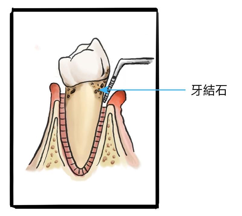 牙周病治療費用-中度牙周病-牙齦發炎-牙結石-齒槽骨萎縮-葉立維醫師-桃園牙周病