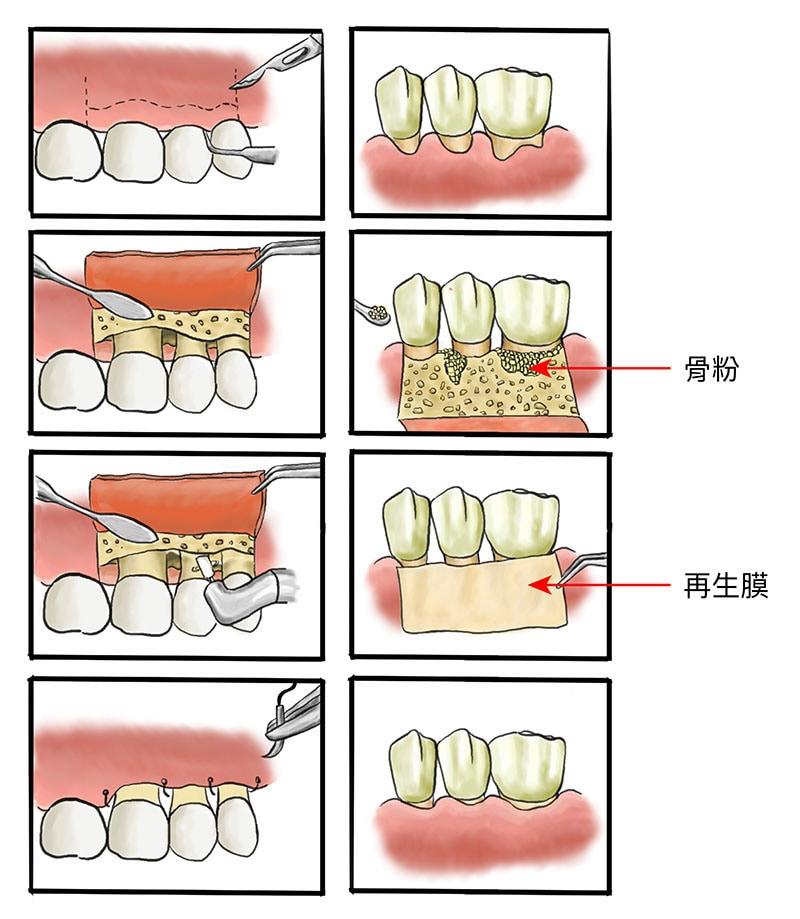 牙周病治療費用-健保-牙周翻瓣手術-自費-骨粉-再生膜-葉立維醫師-桃園牙周病