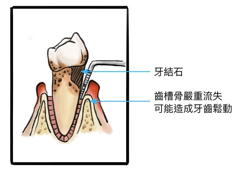 牙周病治療費用-嚴重牙周病-牙齦發炎-牙結石-齒槽骨萎縮-葉立維醫師-桃園牙周病