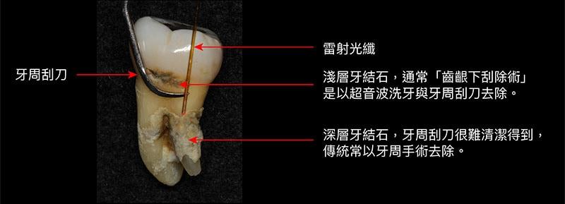 牙周病治療費用-牙結石-牙周刮刀-牙周雷射-牙周手術-葉立維醫師-桃園牙周病
