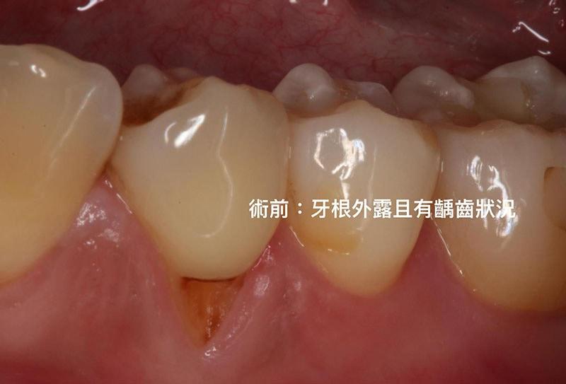 牙周病治療費用-自費-牙根覆蓋術-手術前-牙根外露-葉立維醫師-桃園牙周病