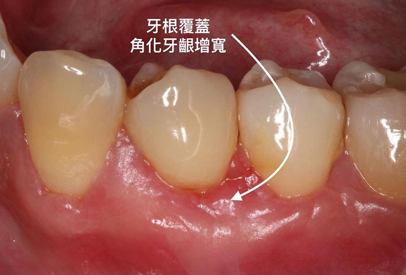 牙周病治療費用-自費-牙根覆蓋術-手術後-角化牙齦增寬-葉立維醫師-桃園牙周病