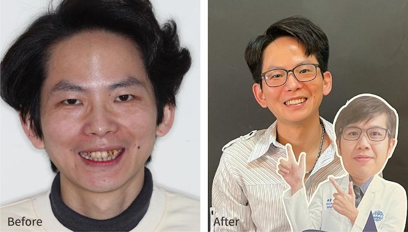 嚴重牙周病-牙周病治療-治療前後患者笑容比較-牙周病專科-楊梅牙周病-推薦