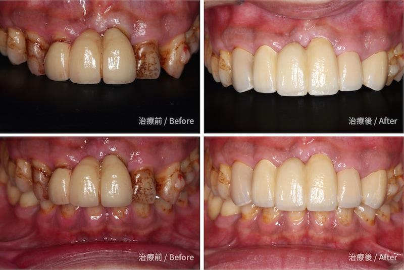 嚴重牙周病-牙周病治療-治療前後牙齒比較-牙周病專科-楊梅牙周病-推薦